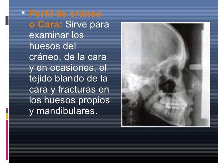  Maxilar en Oblicua: Esta proyección nos muestra fracturas del cuerpo del maxilar inferior y sus ramas descendente y hori...