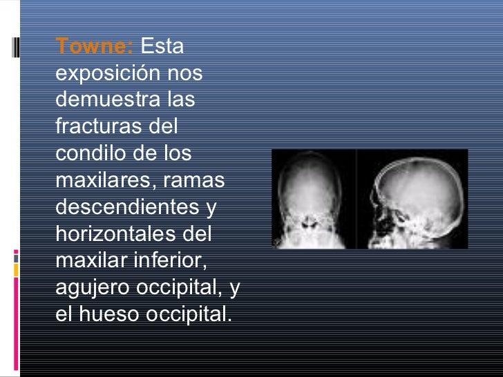 CRÁNEO EN PEDIATRIAEl cráneo neonatal posee una bóveda relativamentegrande, mientras la porción frontal y la base, sonpequ...