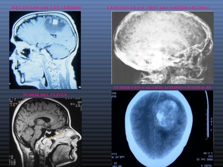 A y B TUMOR PINEAL           M - TUMORES DEL CAVUMB                        PANSINUSITIS   TAC CORONAL SINUSITIS UNILATERAL