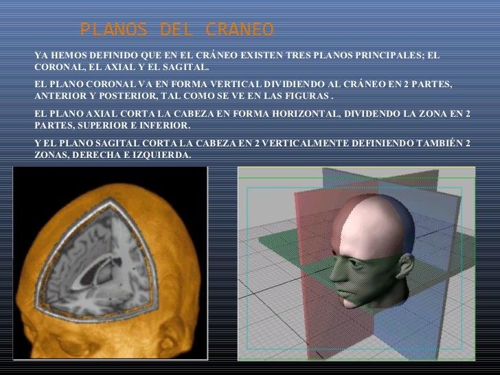 PLANOS DEL CRANEOYA HEMOS DEFINIDO QUE EN EL CRÁNEO EXISTEN TRES PLANOS PRINCIPALES; ELCORONAL, EL AXIAL Y EL SAGITAL.EL P...