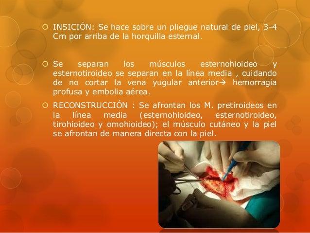 Posiciones e incisiones en cirug a for Esternohioideo y esternotiroideo