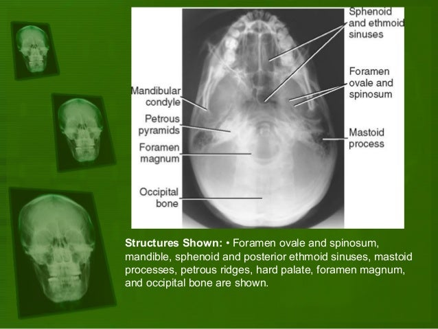 Positioning and radiographic anatomy of the skull