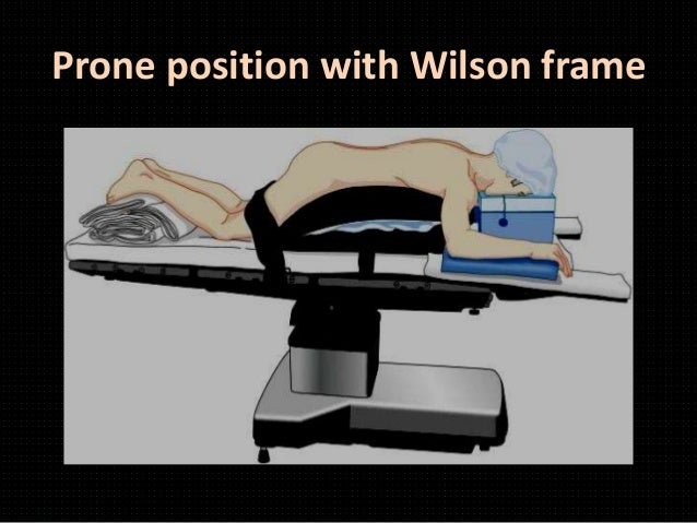 46 prone position with wilson frame - Wilson Frame