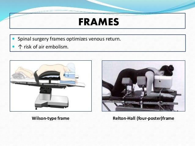 Wilson Frame Positioning - Frame Design & Reviews ✓