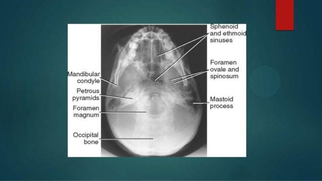 Positioning of skull