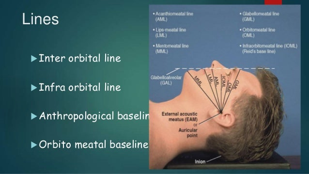 Lines  Inter orbital line  Infra orbital line  Anthropological baseline  Orbito meatal baseline