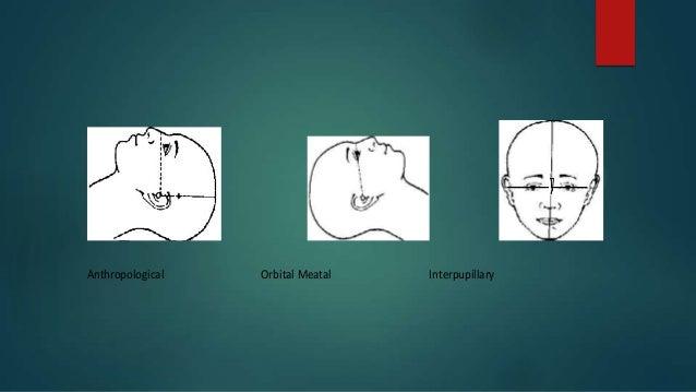 Anthropological Orbital Meatal Interpupillary