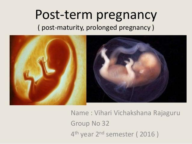 Post-term pregnancy ( post-maturity, prolonged pregnancy ) Name : Vihari Vichakshana Rajaguru Group No 32 4th year 2nd sem...