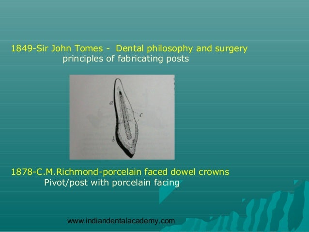 1849-Sir John Tomes - Dental philosophy and surgery           principles of fabricating posts1878-C.M.Richmond-porcelain f...