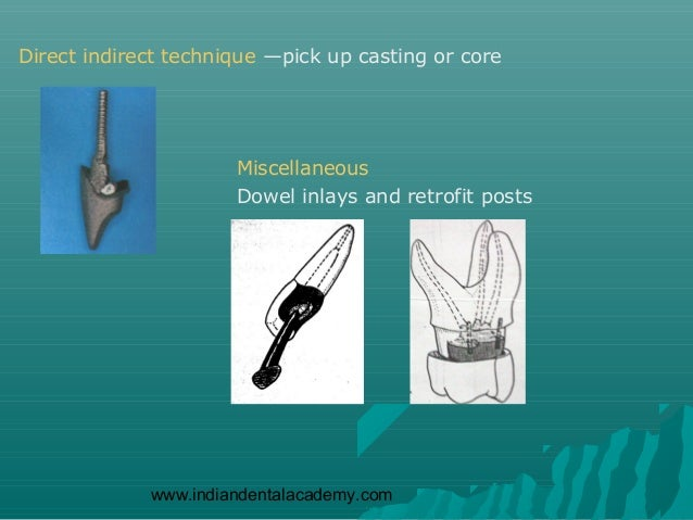 Direct indirect technique —pick up casting or core                      Miscellaneous                      Dowel inlays an...