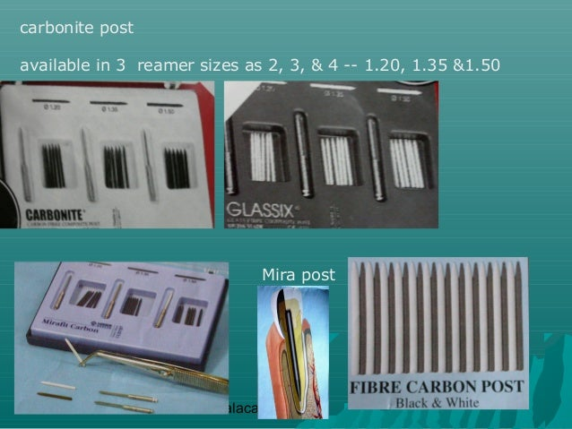 carbonite postavailable in 3 reamer sizes as 2, 3, & 4 -- 1.20, 1.35 &1.50                               Mira post        ...