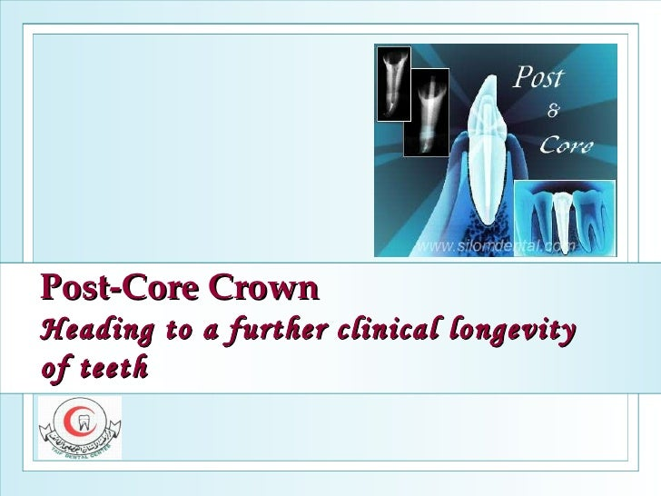 Post-Core Crown Heading to a further clinical longevity of teeth
