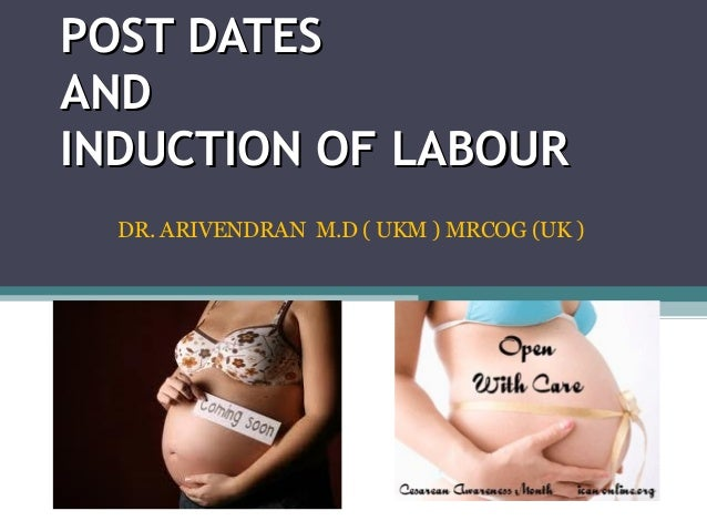 POST DATESPOST DATES ANDAND INDUCTION OF LABOURINDUCTION OF LABOUR DR. ARIVENDRAN M.D ( UKM ) MRCOG (UK )