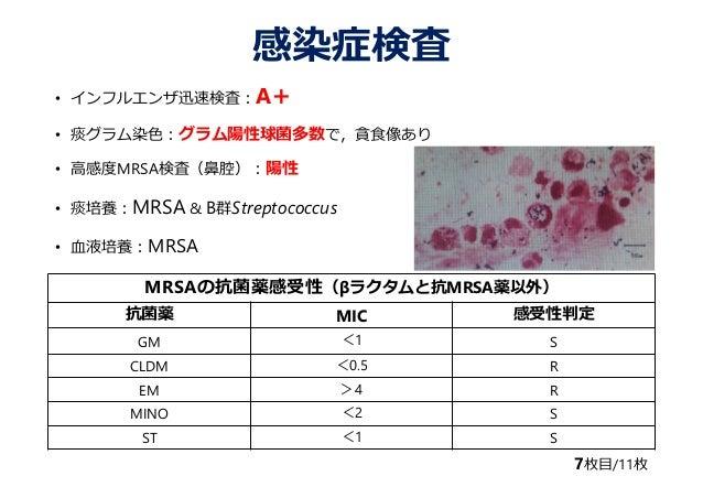 インフルエンザの二次感染 ~市中型MRSA感染の合併~