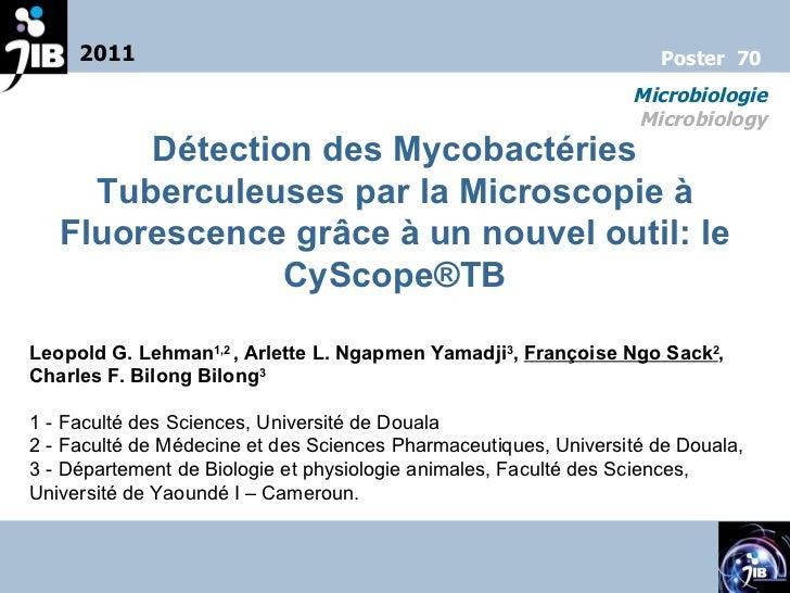 Détection des Mycobactéries Tuberculeuses par la Microscopie à Fluorescence grâce à un nouvel outil: le CyScope®TB Leopold...