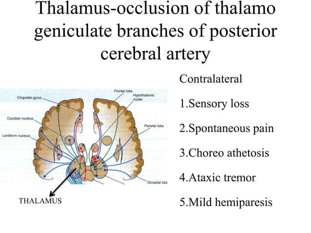 • Branches: – Anterior spinal artery – Posterior spinal artery – Posterior inferior cerebellar artery VERTEBRAL… contd
