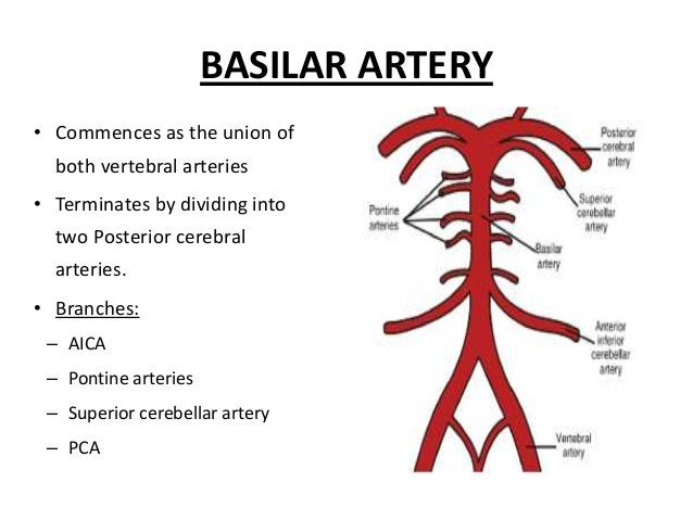 Lateral medullary syndrome (Wallenberg Syndrome – PICA occlusion) A. IPSILATERAL 1.Xth cranial nerve palsy 2.Cerebellar si...
