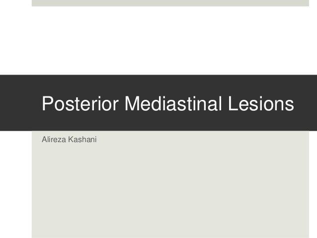 Posterior Mediastinal Lesions  Alireza Kashani