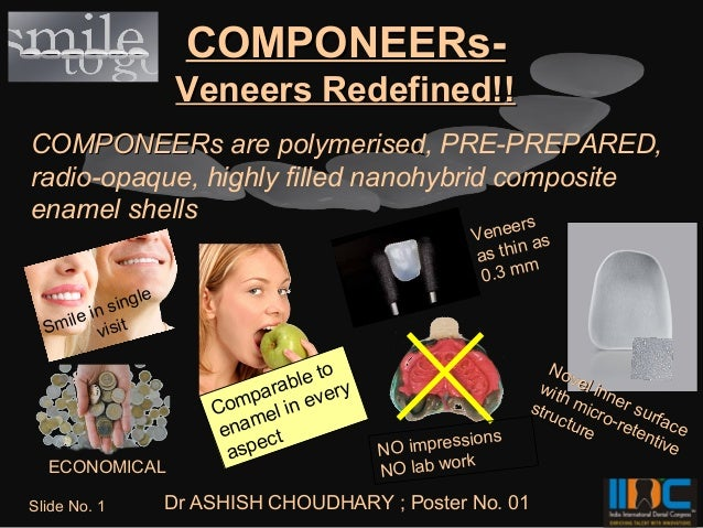 COMPONEERs-                    Veneers Redefined!!COMPONEERs are polymerised, PRE-PREPARED,radio-opaque, highly filled nan...