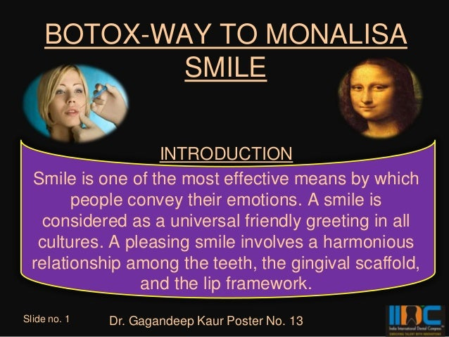BOTOX-WAY TO MONALISA           SMILE                   INTRODUCTION  Smile is one of the most effective means by which   ...