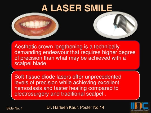 A LASER SMILE     Aesthetic crown lengthening is a technically     demanding endeavour that requires higher degree     of ...