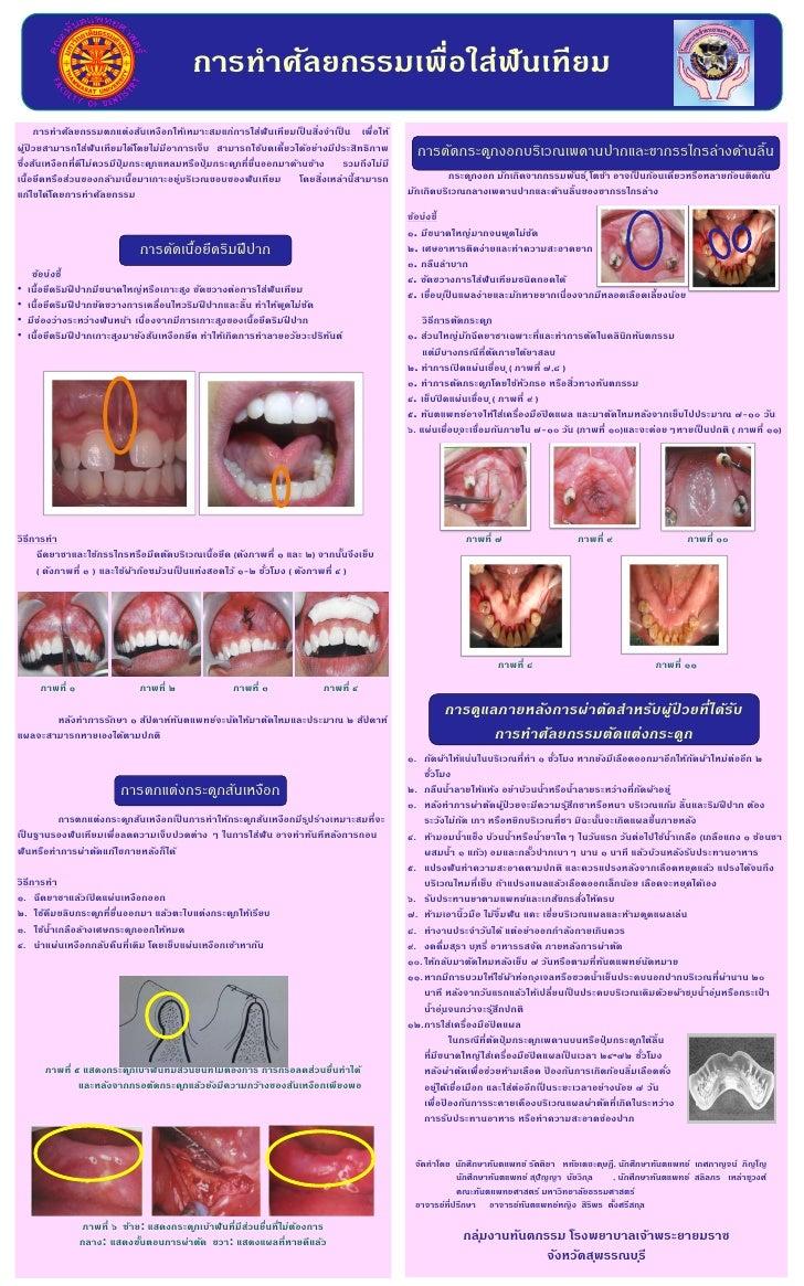 การทาศัลยกรรมเพื่อใส่ฟันเทียม      การทาศัลยกรรมตกแต่งสันเหงือกให้เหมาะสมแก่การใส่ฟันเทียมเปนสิ่งจาเปน เพื่อให้           ...