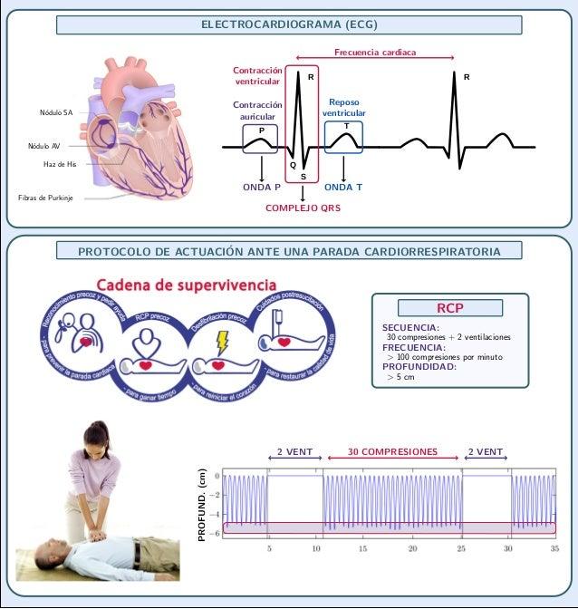 ELECTROCARDIOGRAMA (ECG)                                                                                 Frecuencia cardia...