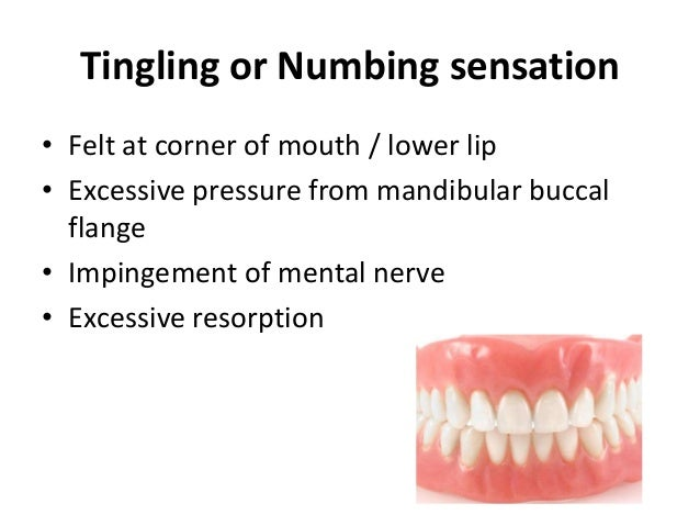Post insertion problems in complete dentures