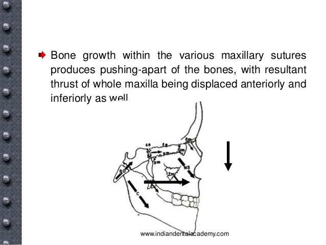 Specific Causes Of Malocclusion 24032194 additionally 5891832 additionally Post Natal Growth And Development Of Mandible And Maxilla further Growth Development Of Cranial Base Vault Cranial in addition 9 Orthodontics I Development Assessment And Treatment Planning. on growth and development of maxilla