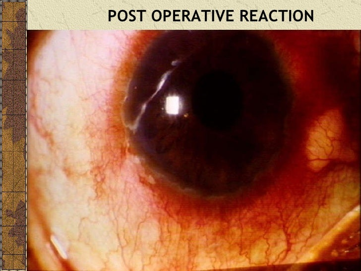 What are some complications that can happen from cataract surgery?