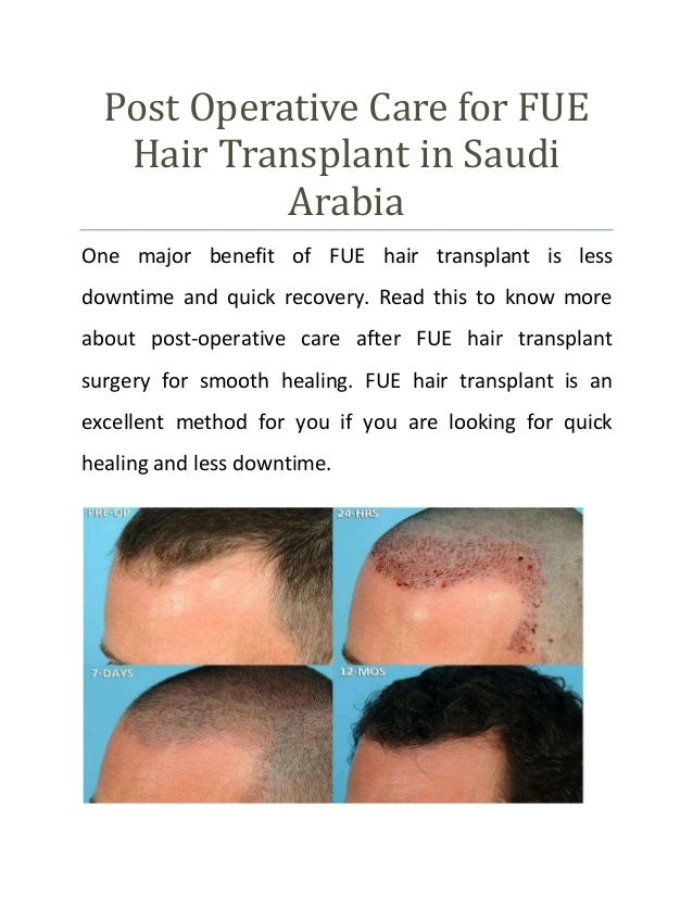 Post Operative Care for FUE Hair Transplant in Saudi Arabia One major benefit of FUE hair transplant is less downtime and ...