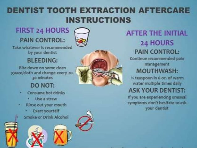 Post Operative Instructions To Patient After Extraction