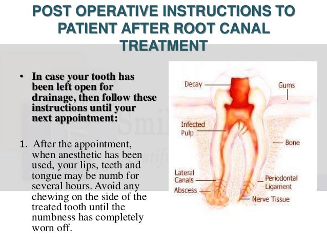 Postoperative instructions after Root Canal Treatment
