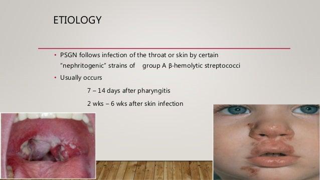 Post streptococcal glomerulonephritis  Slide 3