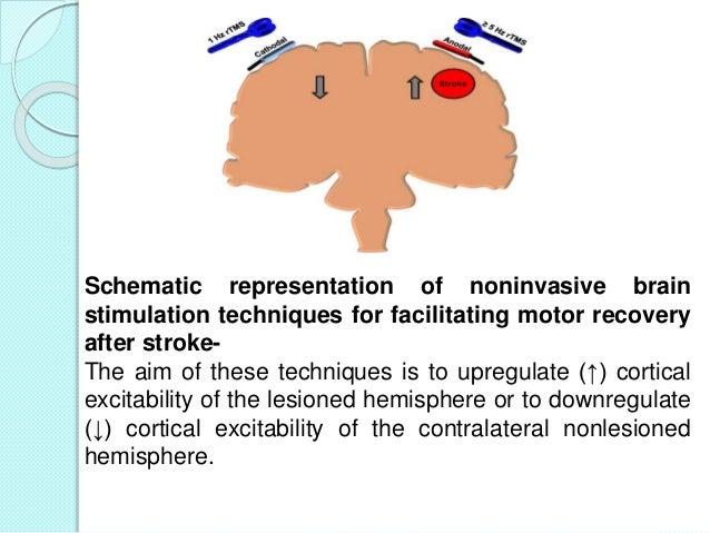 Post stroke motor rehabilitation