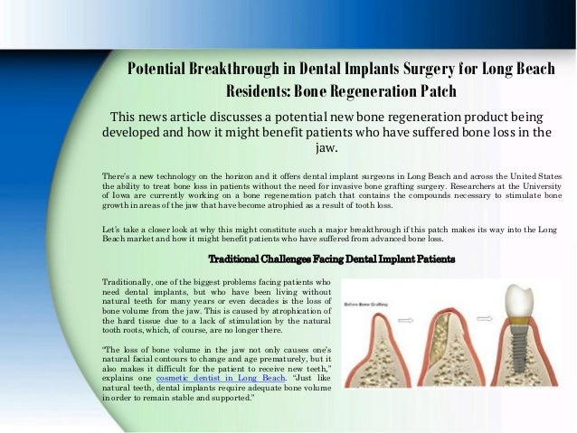 Potential Breakthrough in Dental Implants Surgery for Long Beach Residents: Bone Regeneration Patch This news article disc...