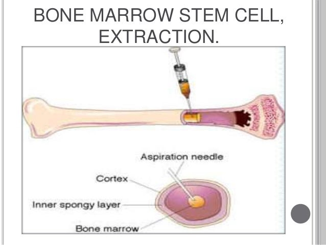 Potential Uses of Stem Cells