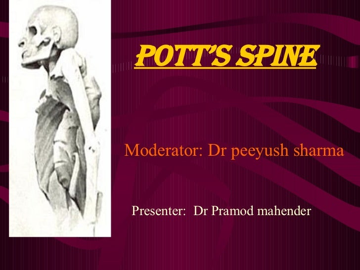 Pott's sPine  Moderator: Dr peeyush sharma   Presenter: Dr Pramod mahender