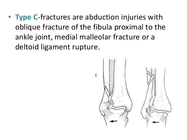 ... 16. ORIF Depending upon the type of fracture- Medial malleolus# u2022 Transverse#- compression screwstension band wiring ...  sc 1 st  SlideShare : tension band wiring medial malleolus - yogabreezes.com