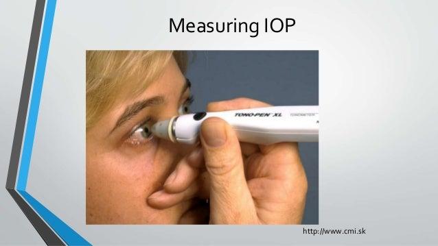 Measuring IOP http://www.cmi.sk