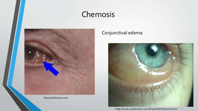 Chemosis Conjunctival edema http://www.eyedoctom.com/EyeInfo/Chemosis.htm https://drkotlus.com