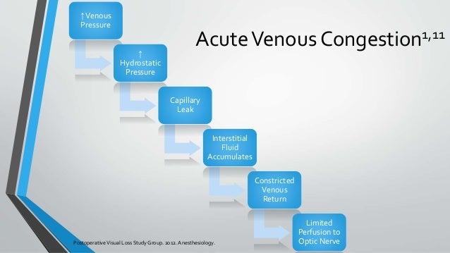 AcuteVenous Congestion1,11 PostoperativeVisual Loss StudyGroup. 2012.Anesthesiology. ↑Venous Pressure ↑ Hydrostatic Pressu...