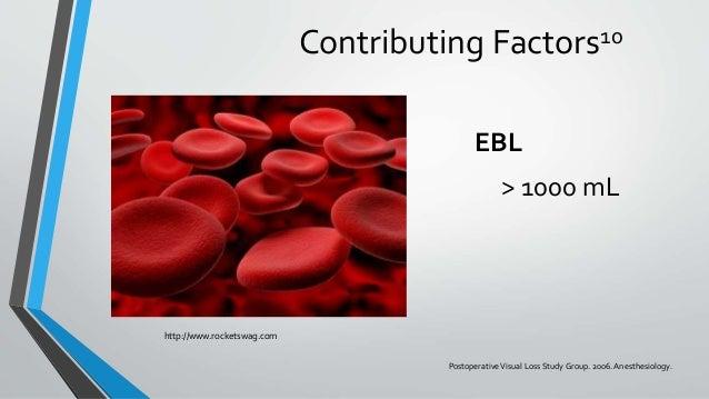 Contributing Factors10 EBL > 1000 mL http://www.rocketswag.com PostoperativeVisual Loss StudyGroup. 2006. Anesthesiology.