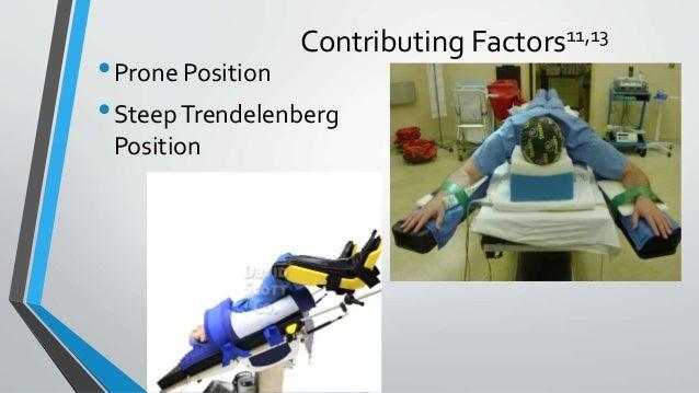 Contributing Factors11,13 •Prone Position •SteepTrendelenberg Position