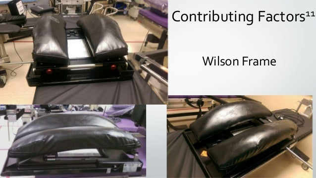 Wilson Frame Contributing Factors11