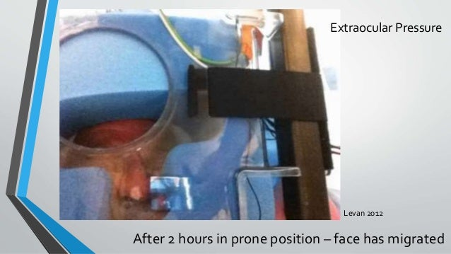 After 2 hours in prone position – face has migrated Levan 2012 Extraocular Pressure