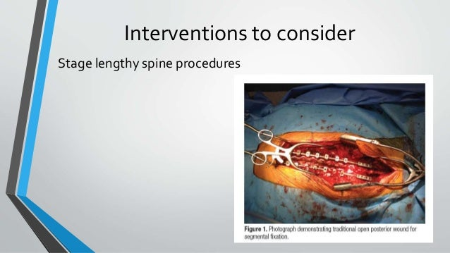 Interventions to consider Stage lengthy spine procedures