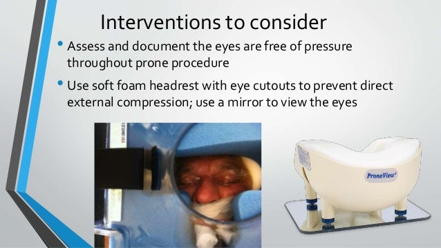 Interventions to consider • Assess and document the eyes are free of pressure throughout prone procedure • Use soft foam h...