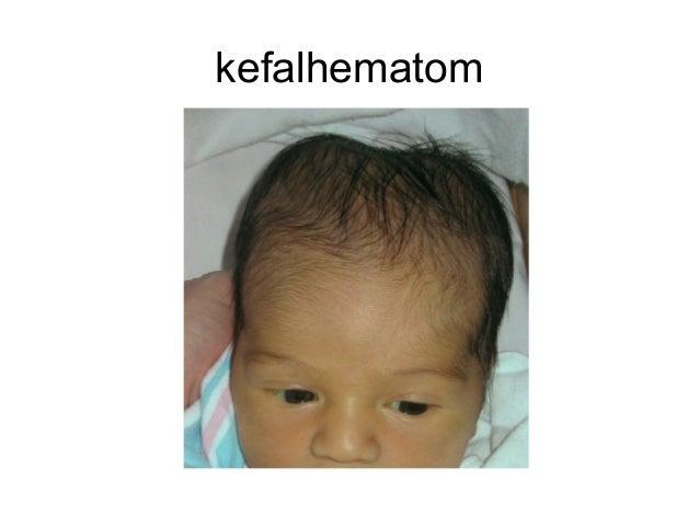 Резултат слика за kefalhematom