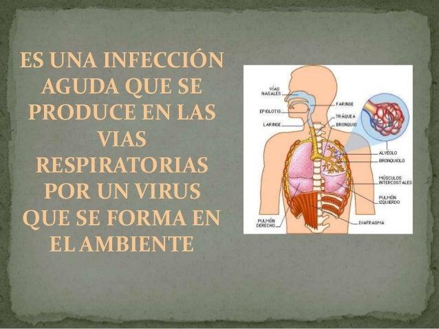 """TIPOS DE VIRUS: •El virus A"""": es el que causa epidemias por motivos desconocidos que suelen empezar bruscamente en los mes..."""